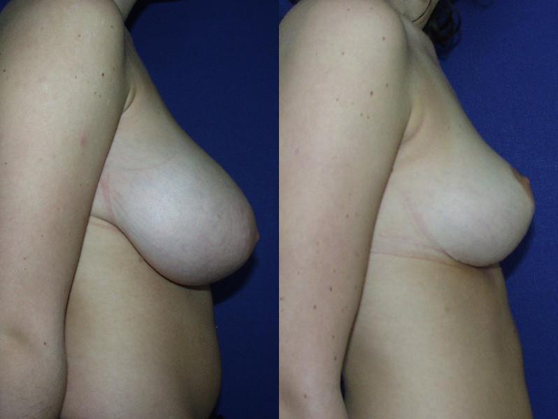 Уменьшение груди Фотографии - MUDr. врач Jiri Vrbicky.